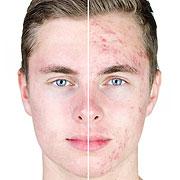 acne bij volwassenen