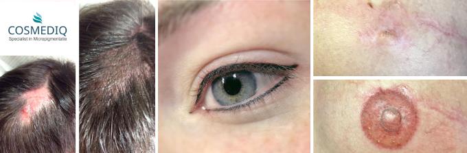 haarpigmentierung-tepeltatoeage-nijmegen-boxmeer
